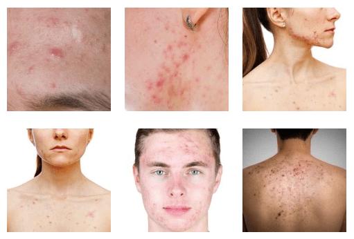 Six photos qui représentent les différents types d'acné