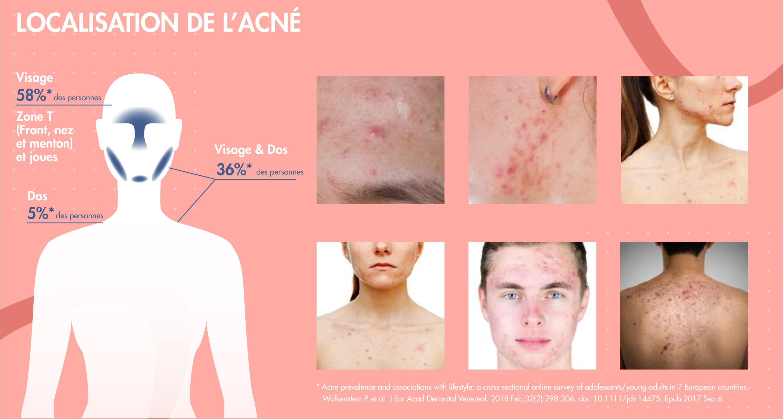 Acne-severe-localisation
