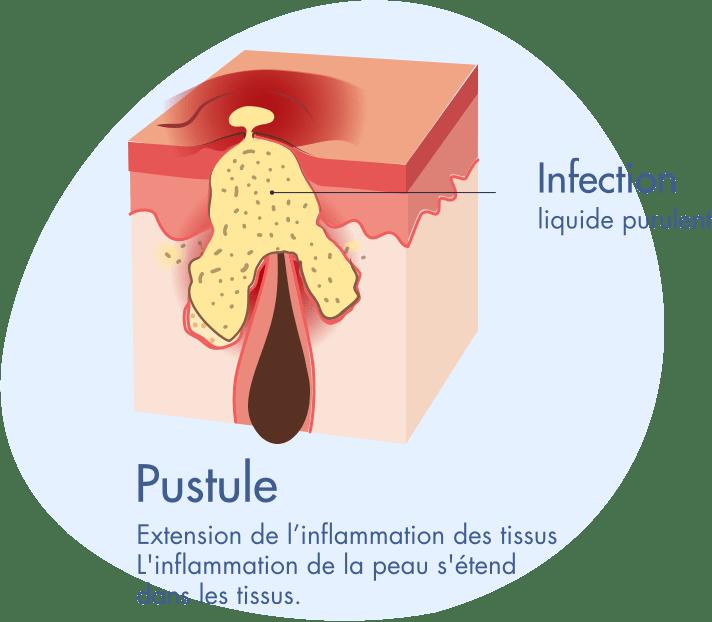 Transformation d'une papule en pustule - Inforgraphie Acne severe