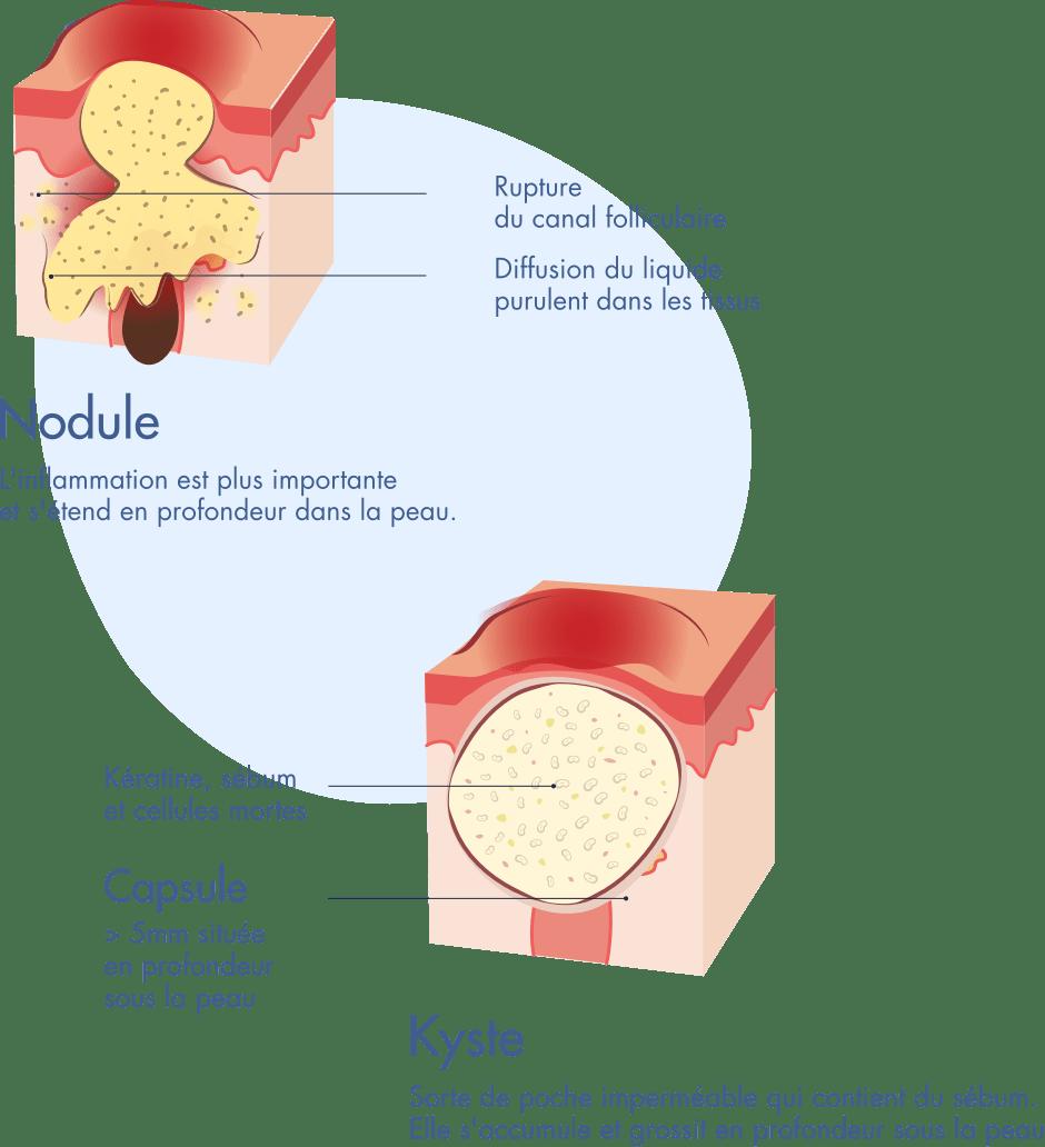 Schema d'un nodule et d'un kyste - Infographie Acne severe