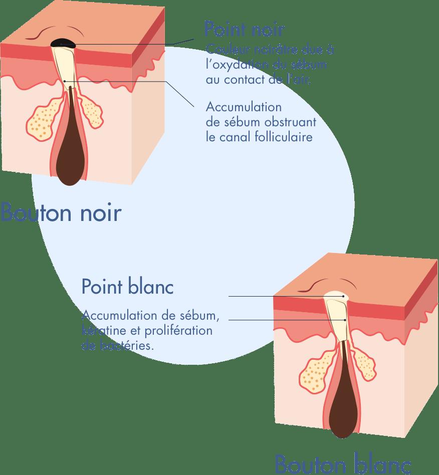 Schema formation d'un bouton blanc et d'un bouton noir sur la peau - Infographie Acne severe